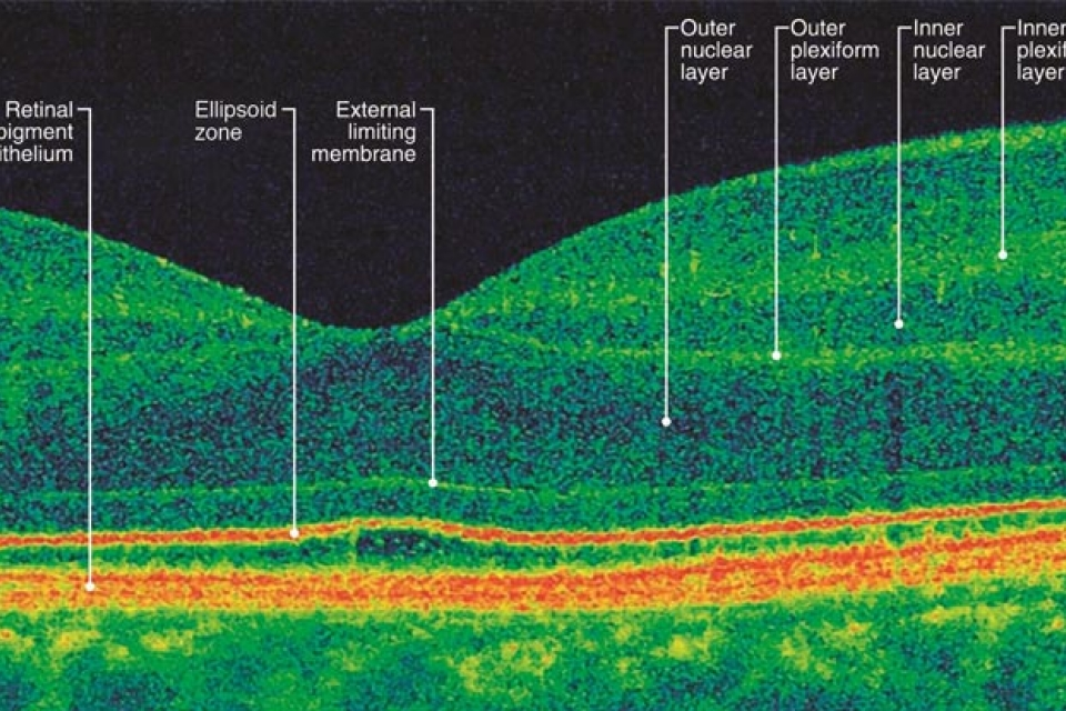 Optical coherence tomography output